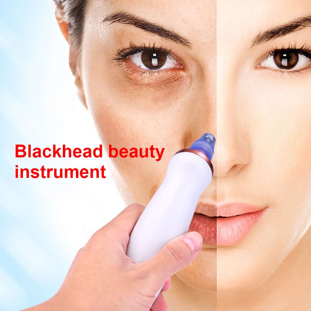Electric Facial Skin Care Face Nose and Chin Acne Pore Blackhead Remover Cleaner Vacuum Acne Cleanser